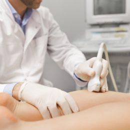 , Lower Limb DVT Ultrasound